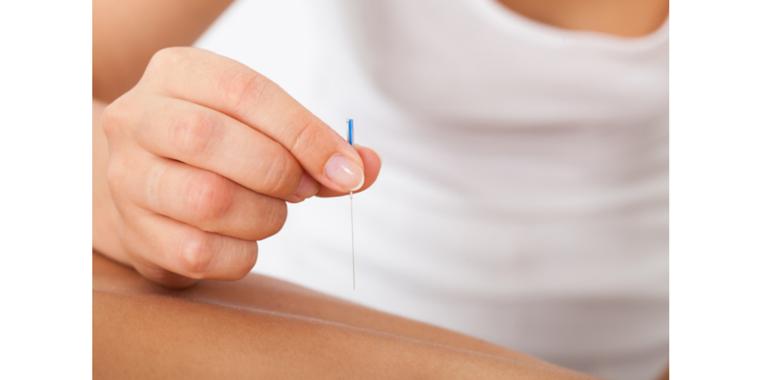 Dry Needling - Bodyworks Physiotherapy
